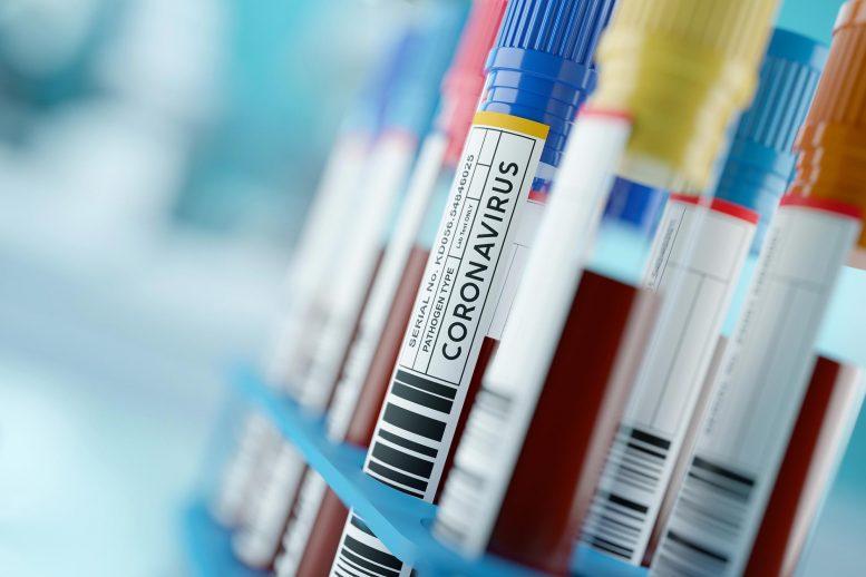 COVID 19 Coronavirus Blood Test